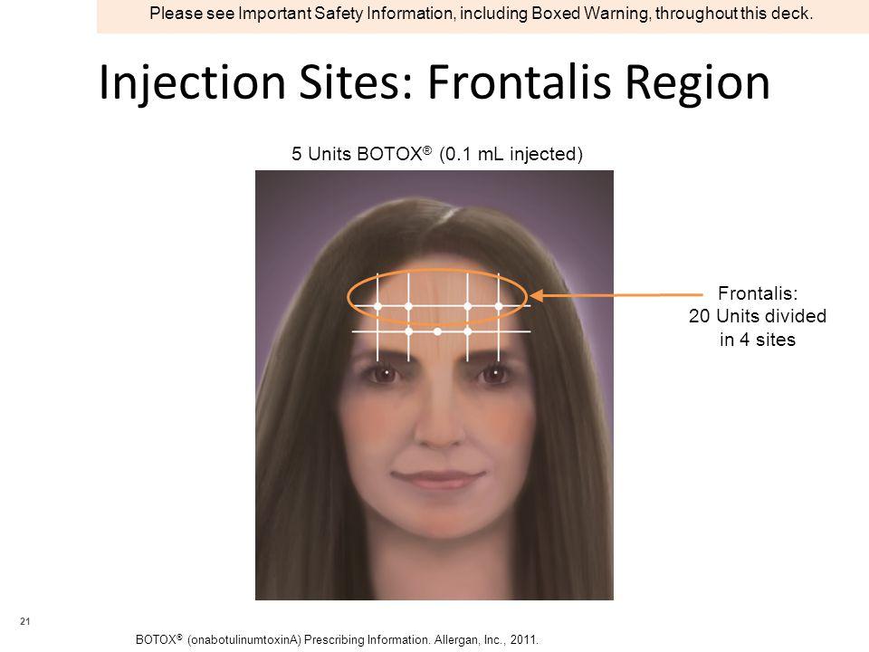 Injection Sites: Frontalis Region BOTOX ® (onabotulinumtoxinA) Prescribing Information. Allergan, Inc., 2011. 5 Units BOTOX ® (0.1 mL injected) Fronta