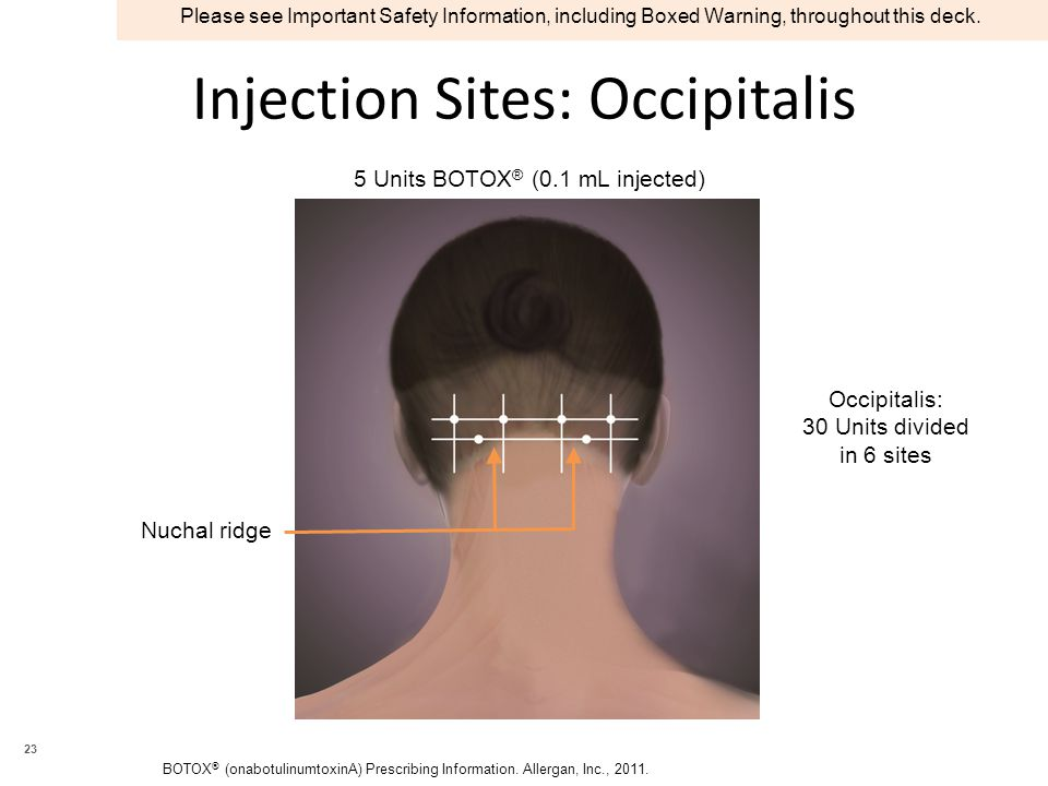 Injection Sites: Occipitalis Occipitalis: 30 Units divided in 6 sites Nuchal ridge 5 Units BOTOX ® (0.1 mL injected) BOTOX ® (onabotulinumtoxinA) Prescribing Information.