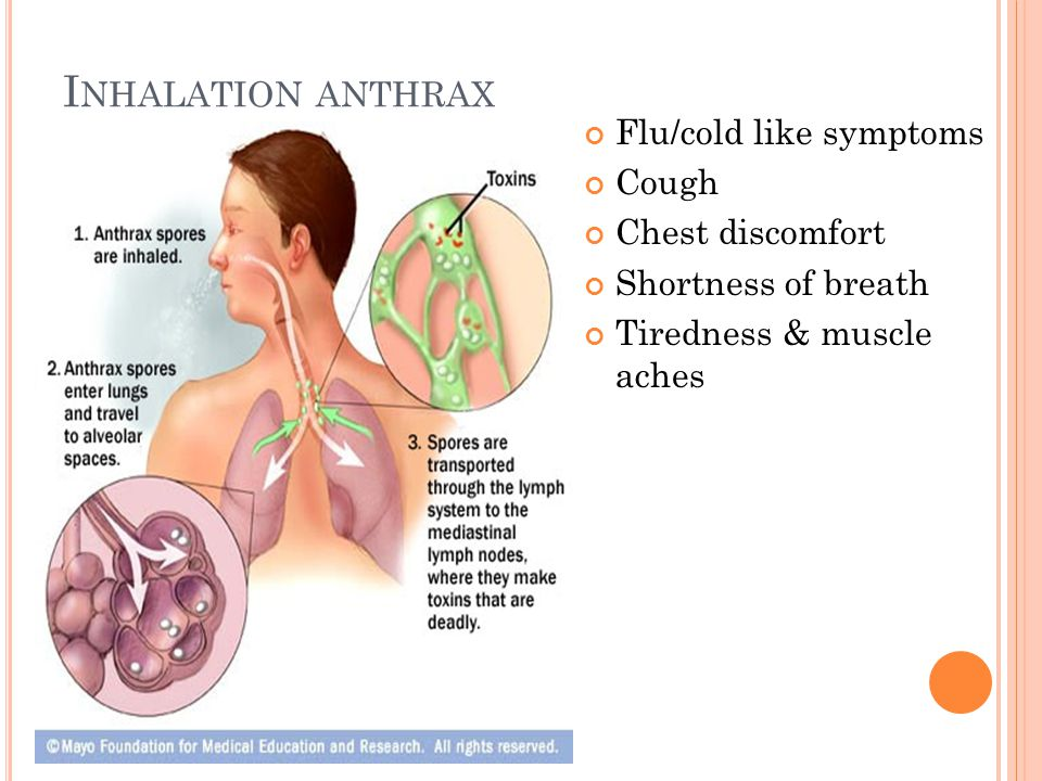 I NHALATION ANTHRAX Flu/cold like symptoms Cough Chest discomfort Shortness of breath Tiredness & muscle aches