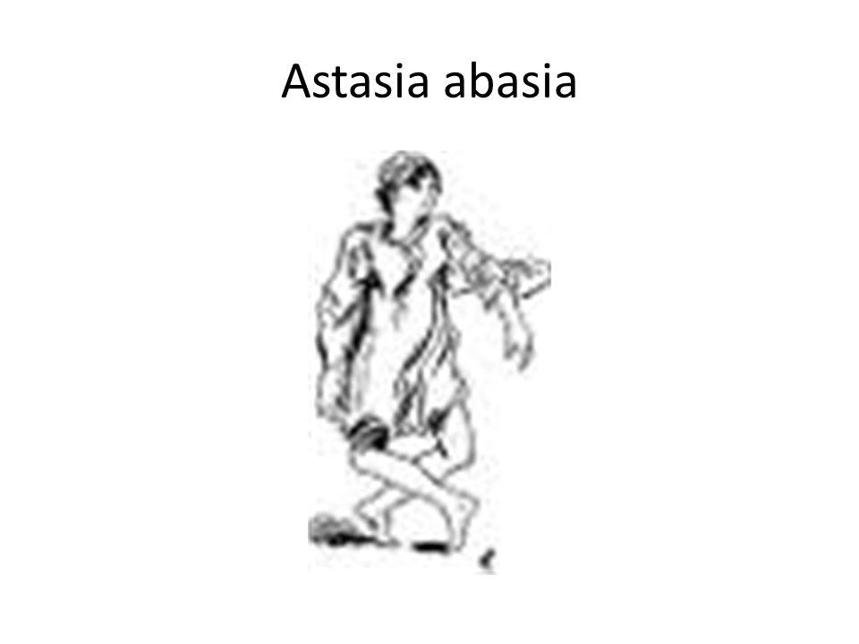 Astasia abasia