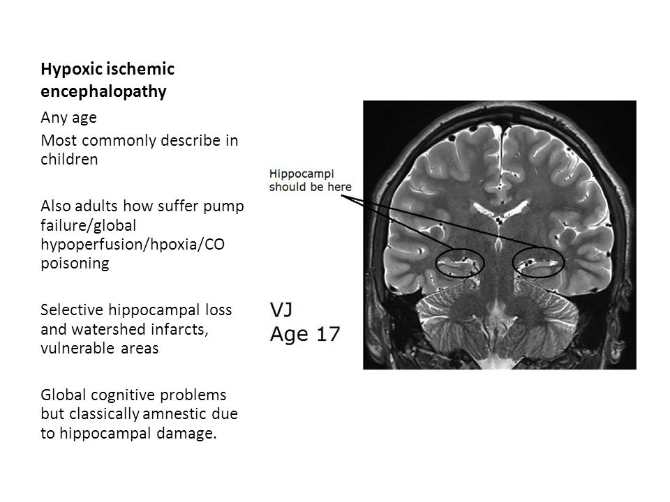 Hypoxic ischemic encephalopathy Any age Most commonly describe in children Also adults how suffer pump failure/global hypoperfusion/hpoxia/CO poisonin