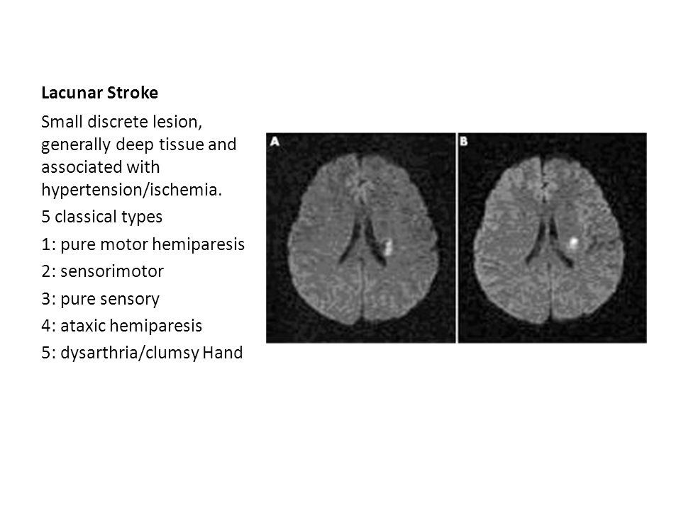 Lacunar Stroke Small discrete lesion, generally deep tissue and associated with hypertension/ischemia. 5 classical types 1: pure motor hemiparesis 2: