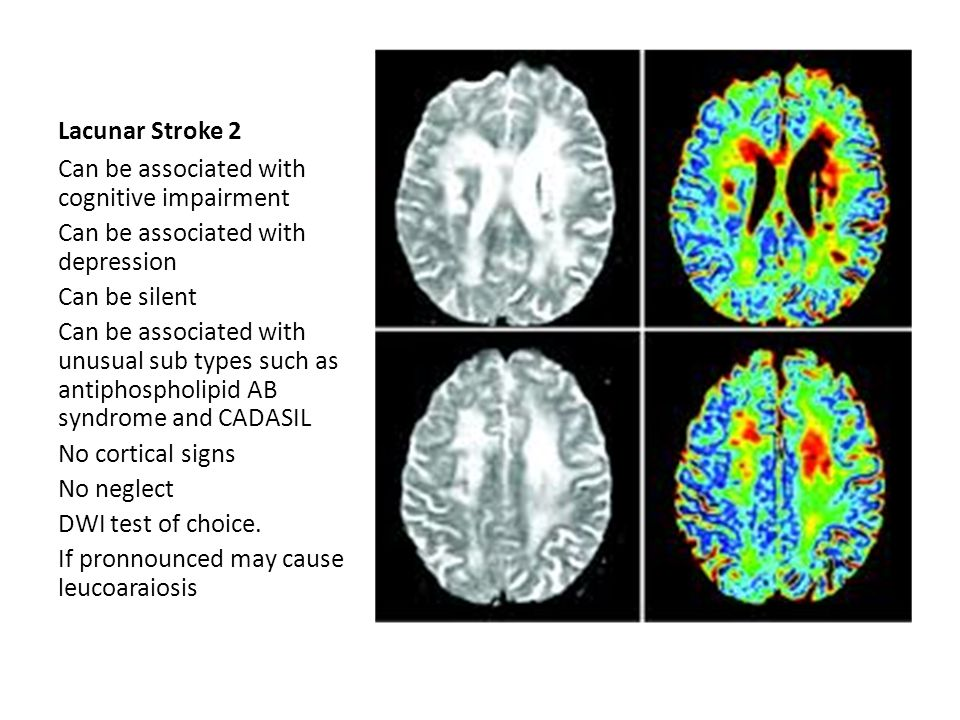 Large Vessel Disease Cortical signs Note: amarosis fugax Generally large vessel occlusion, embolic Tends to be MCA territory ACA is less common Lesion site is obviously important for presentation