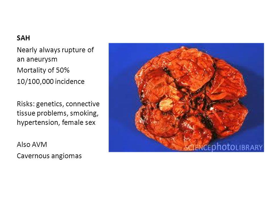Rare causes of stroke CADASIL Venous Shunting, PFO Moya moya disease Carotid dissection Vasculitis Thrombophilias Mitochondrial Farby's disease