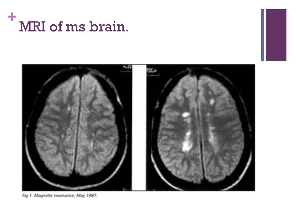 + MRI of ms brain.