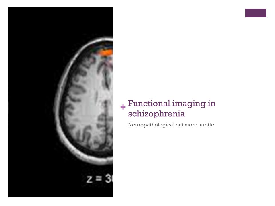 + Functional imaging in schizophrenia Neuropathological but more subtle