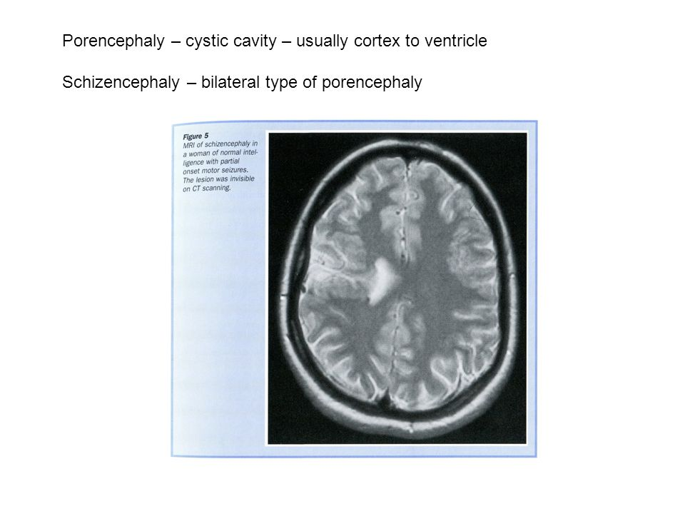 Porencephaly – cystic cavity – usually cortex to ventricle Schizencephaly – bilateral type of porencephaly