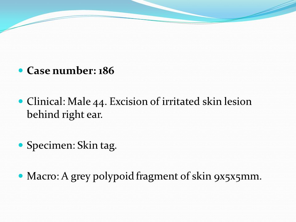 Case number: 186 Clinical: Male 44. Excision of irritated skin lesion behind right ear. Specimen: Skin tag. Macro: A grey polypoid fragment of skin 9x