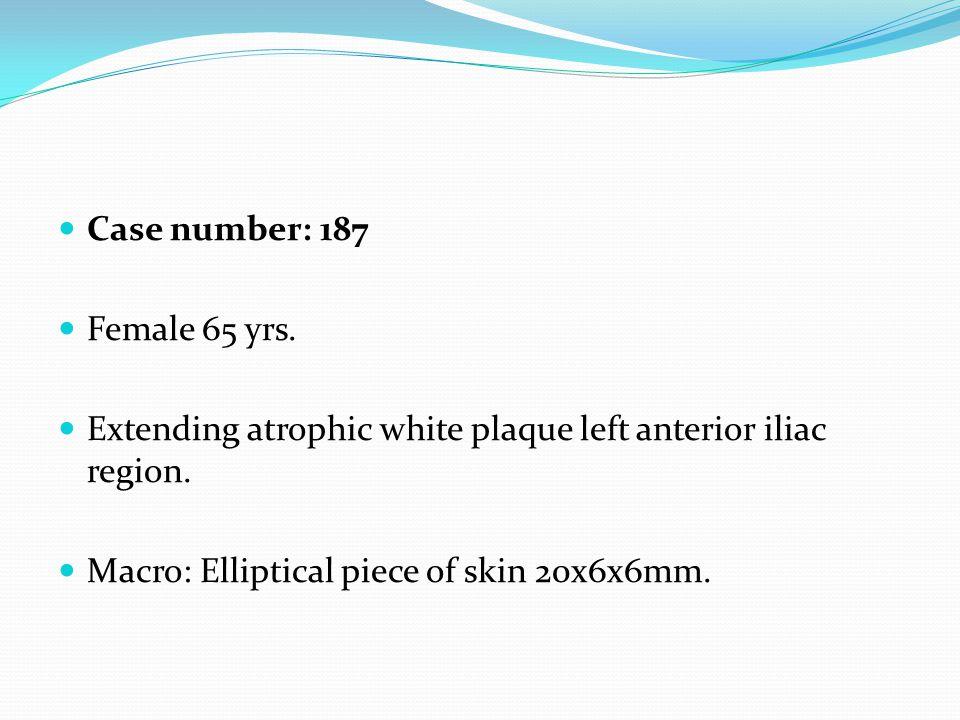Case number: 187 Female 65 yrs. Extending atrophic white plaque left anterior iliac region. Macro: Elliptical piece of skin 20x6x6mm.