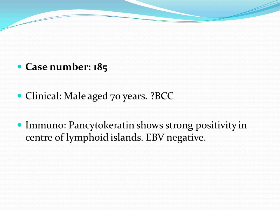 Case number: 185 Clinical: Male aged 70 years. ?BCC Immuno: Pancytokeratin shows strong positivity in centre of lymphoid islands. EBV negative.