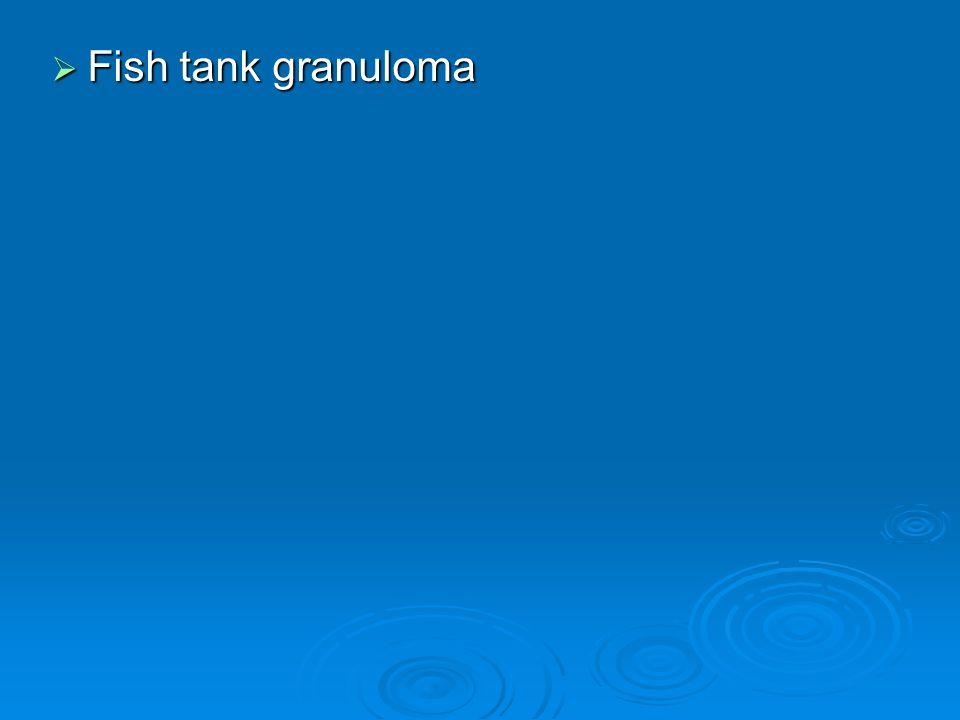  Fish tank granuloma