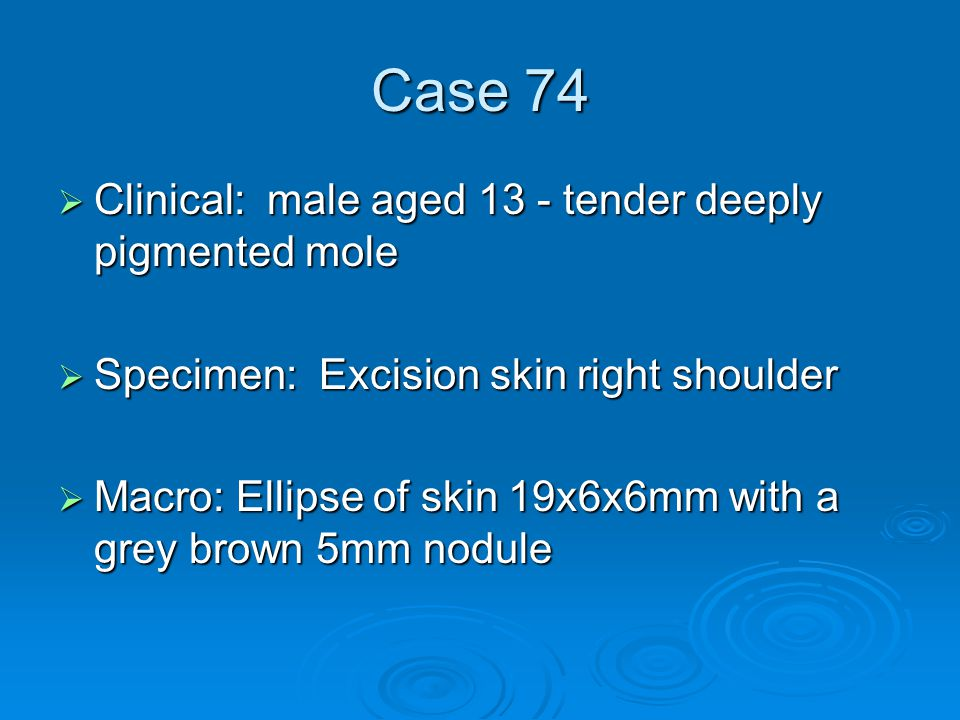 Case 74  Clinical: male aged 13 - tender deeply pigmented mole  Specimen: Excision skin right shoulder  Macro: Ellipse of skin 19x6x6mm with a grey