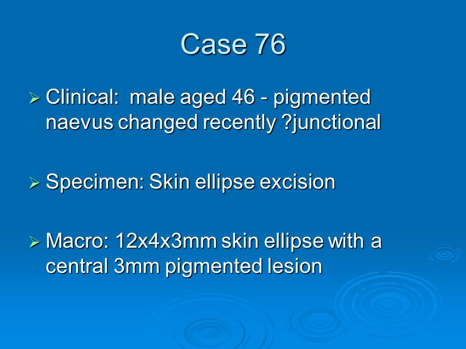 Case 76  Clinical: male aged 46 - pigmented naevus changed recently ?junctional  Specimen: Skin ellipse excision  Macro: 12x4x3mm skin ellipse with