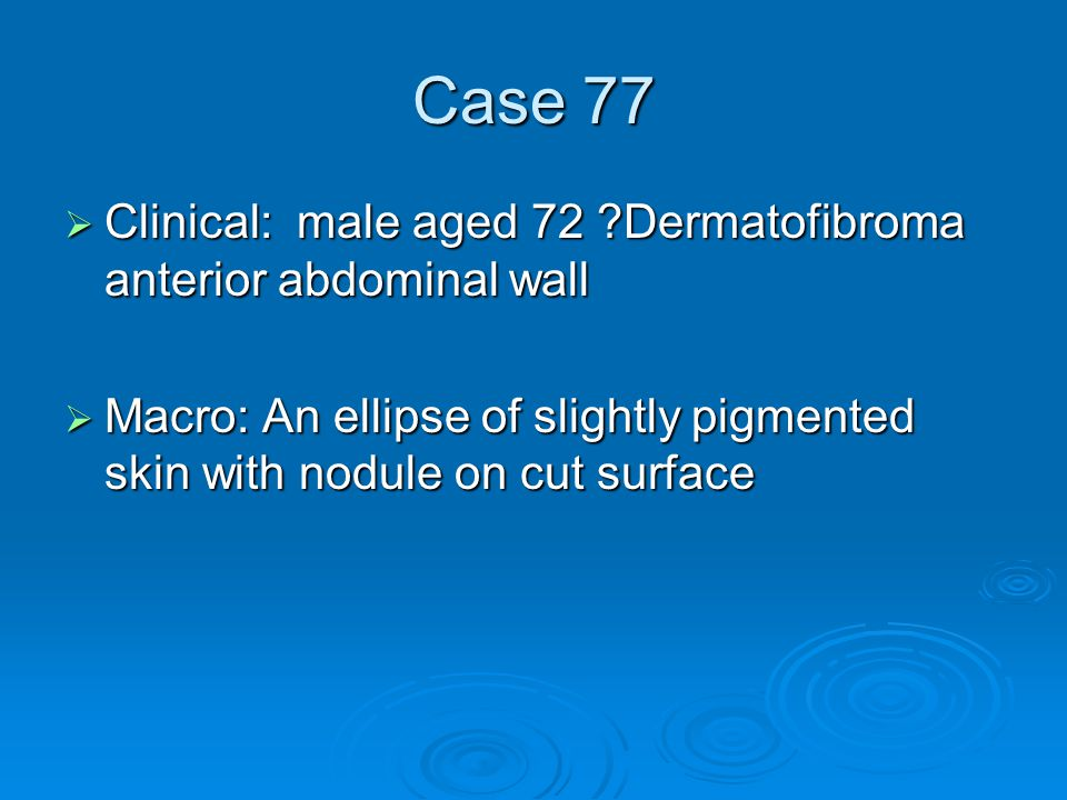 Case 77  Clinical: male aged 72 ?Dermatofibroma anterior abdominal wall  Macro: An ellipse of slightly pigmented skin with nodule on cut surface