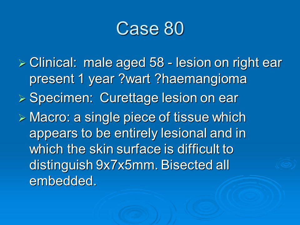 Case 80  Clinical: male aged 58 - lesion on right ear present 1 year ?wart ?haemangioma  Specimen: Curettage lesion on ear  Macro: a single piece o