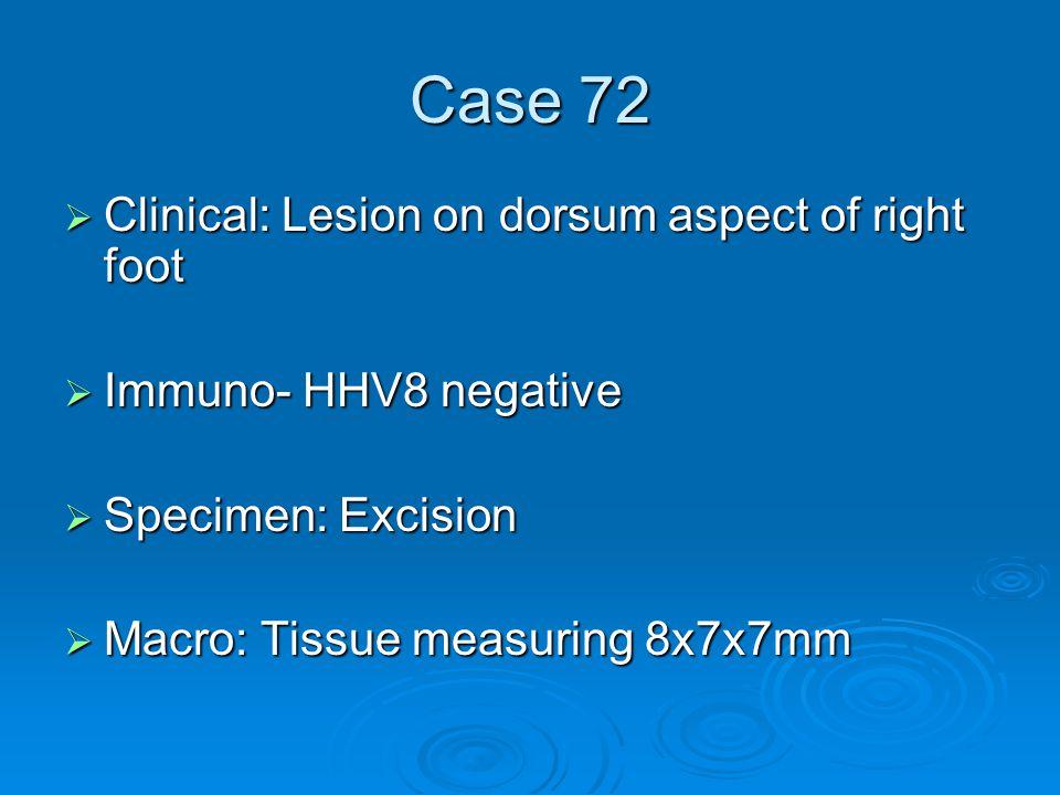 Case 72  Clinical: Lesion on dorsum aspect of right foot  Immuno- HHV8 negative  Specimen: Excision  Macro: Tissue measuring 8x7x7mm