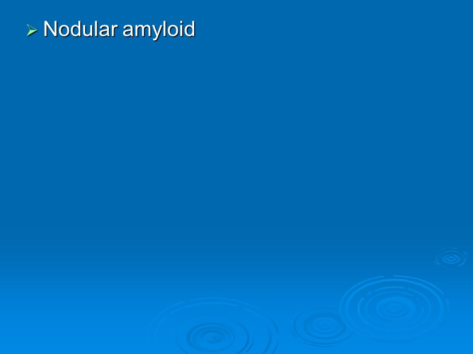  Nodular amyloid