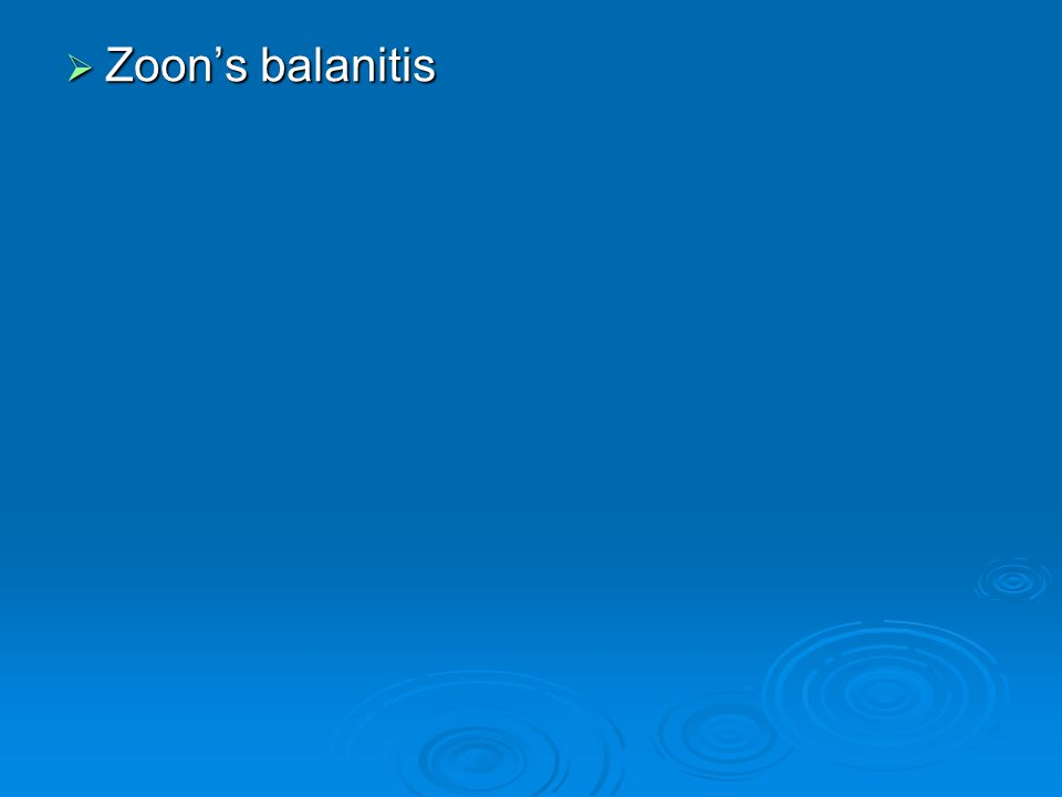  Zoon's balanitis