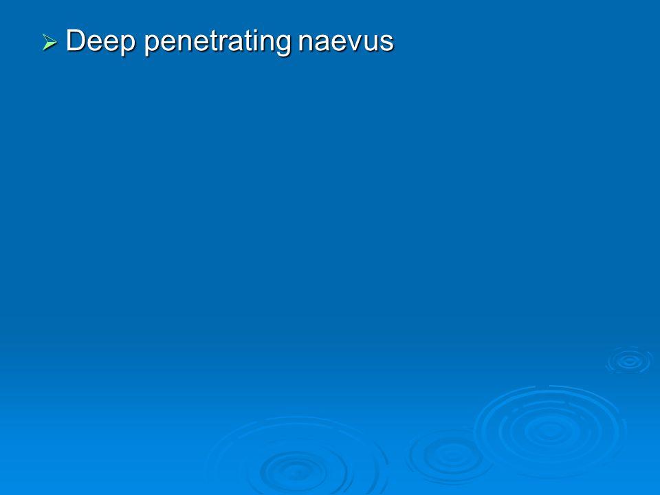  Deep penetrating naevus