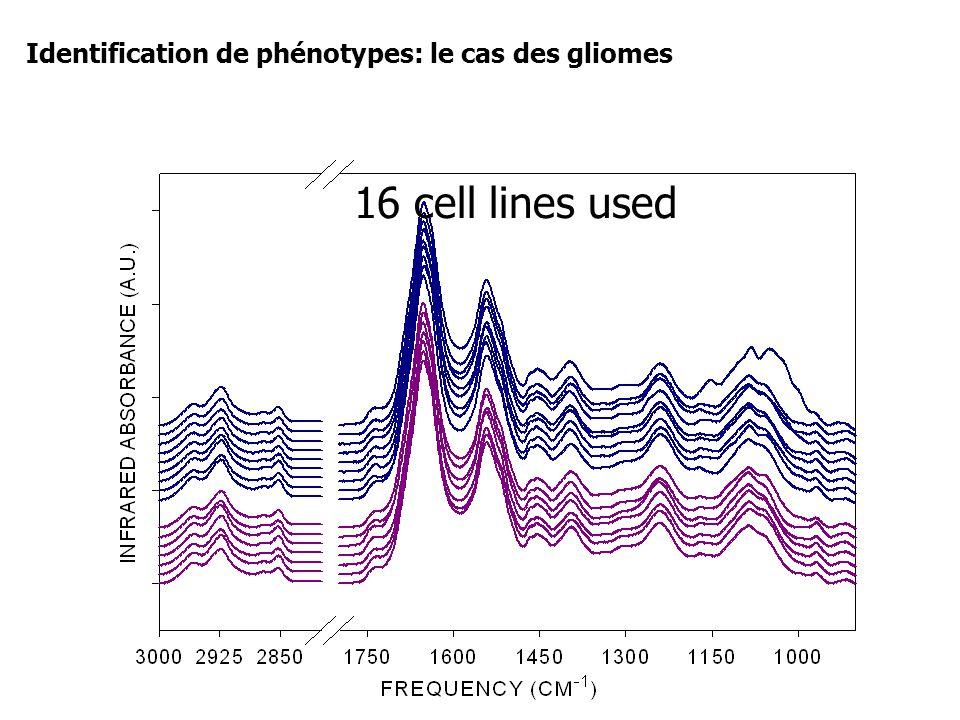 16 cell lines used Identification de phénotypes: le cas des gliomes