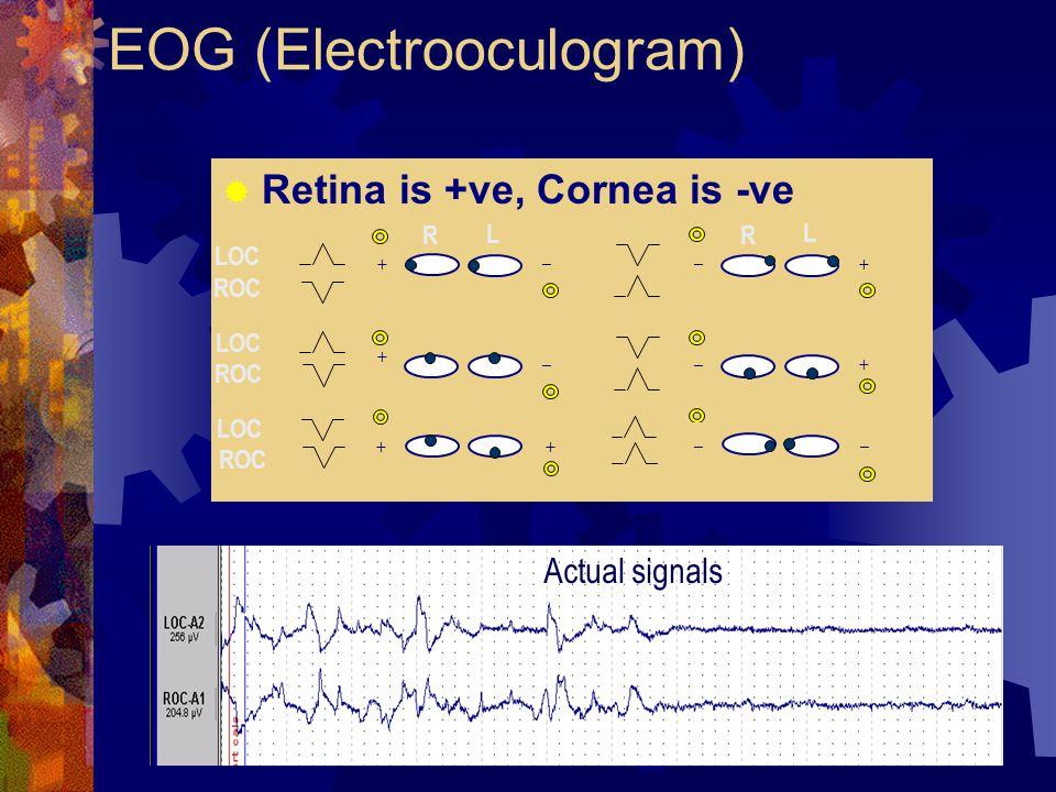 EOG (Electrooculogram)  Retina is +ve, Cornea is -ve + _ + _ _ + _ + LOC ROC R L R L LOC ROC LOC ROC __ ++ Actual signals