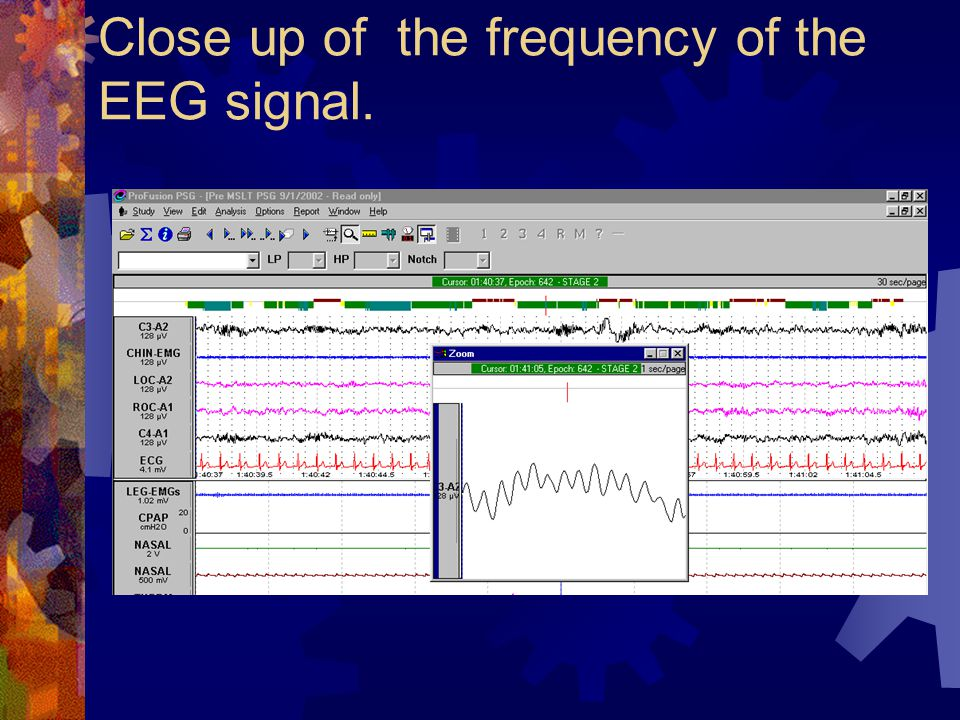 Close up of the frequency of the EEG signal.