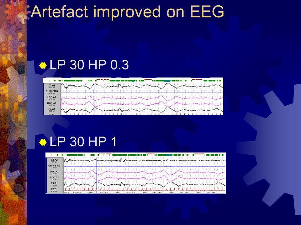 Artefact improved on EEG  LP 30 HP 0.3  LP 30 HP 1