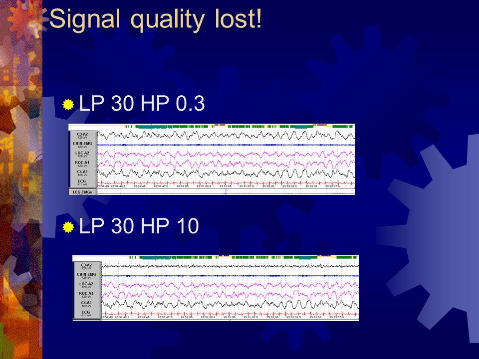  LP 30 HP 0.3  LP 30 HP 10 Signal quality lost!