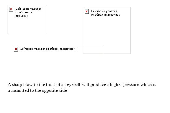 A sharp blow to the front of an eyeball will produce a higher pressure which is transmitted to the opposite side