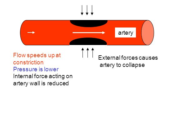 artery External forces causes artery to collapse Flow speeds up at constriction Pressure is lower Internal force acting on artery wall is reduced