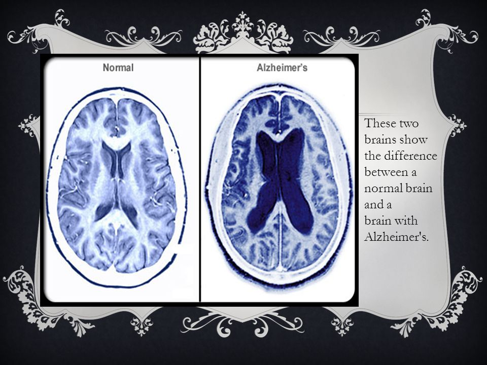 These two brains show the difference between a normal brain and a brain with Alzheimer s.