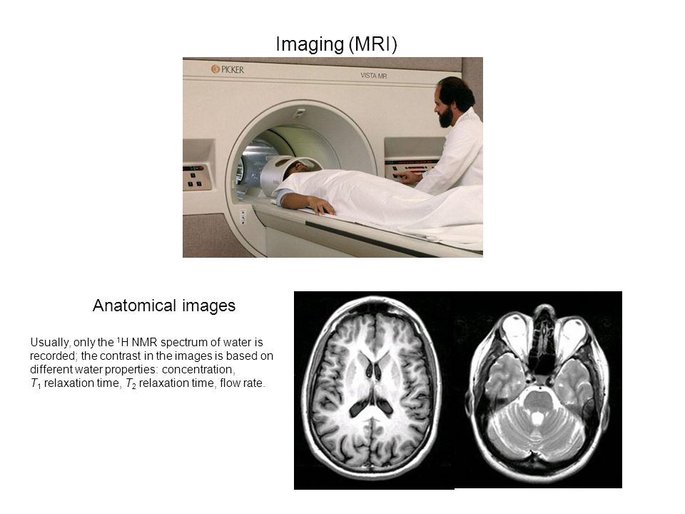 Imaging (MRI) Anatomical images Usually, only the 1 H NMR spectrum of water is recorded; the contrast in the images is based on different water properties: concentration, T 1 relaxation time, T 2 relaxation time, flow rate.