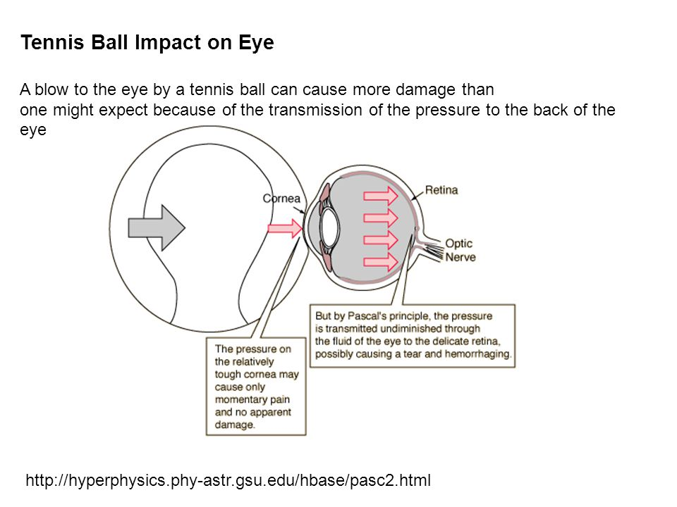 Tennis Ball Impact on Eye A blow to the eye by a tennis ball can cause more damage than one might expect because of the transmission of the pressure to the back of the eye http://hyperphysics.phy-astr.gsu.edu/hbase/pasc2.html