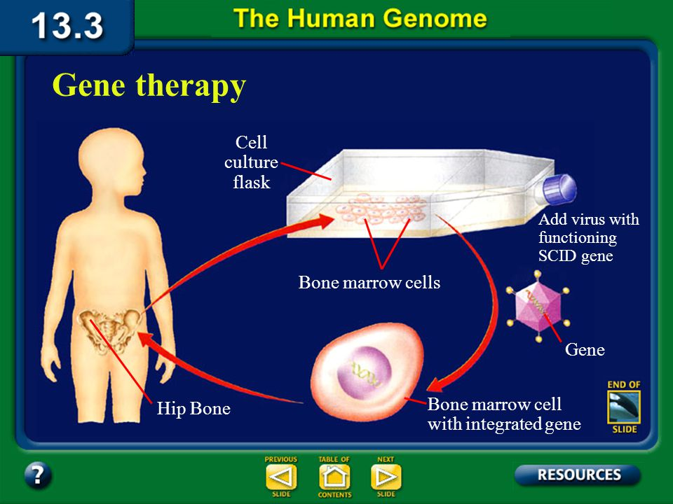 Section 13.3 Summary – pages 349 - 353 In gene therapy for this disorder, the cells of the immune system are removed from the patient's bone marrow, and the functional gene is added to them.