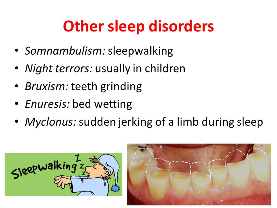 Other sleep disorders Somnambulism: sleepwalking Night terrors: usually in children Bruxism: teeth grinding Enuresis: bed wetting Myclonus: sudden jerking of a limb during sleep