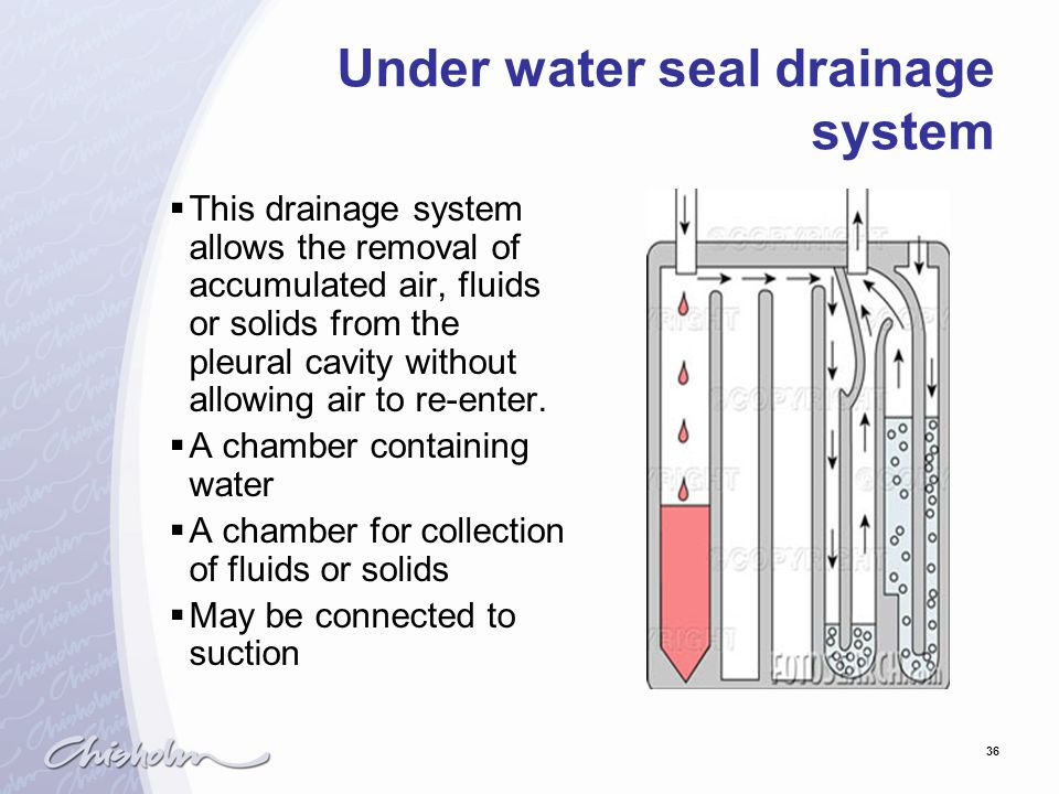 36 Under water seal drainage system  This drainage system allows the removal of accumulated air, fluids or solids from the pleural cavity without all