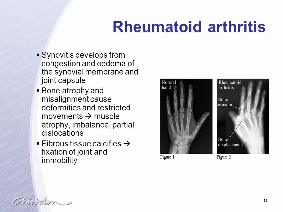28 Rheumatoid arthritis  Synovitis develops from congestion and oedema of the synovial membrane and joint capsule  Bone atrophy and misalignment cau