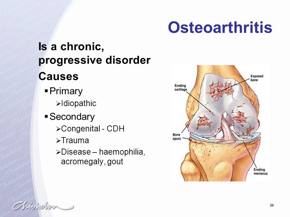 29 Osteoarthritis Is a chronic, progressive disorder Causes  Primary  Idiopathic  Secondary  Congenital - CDH  Trauma  Disease – haemophilia, ac
