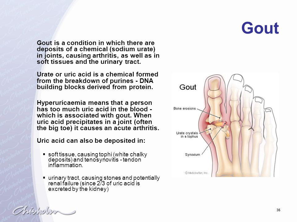 35 Gout Gout is a condition in which there are deposits of a chemical (sodium urate) in joints, causing arthritis, as well as in soft tissues and the