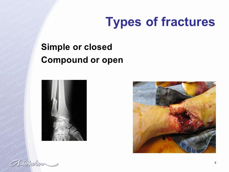 6 Types of fractures Complete Greenstick Comminuted Compression Impacted Depressed Spiral/oblique Longitudinal/linear Transverse Pathological