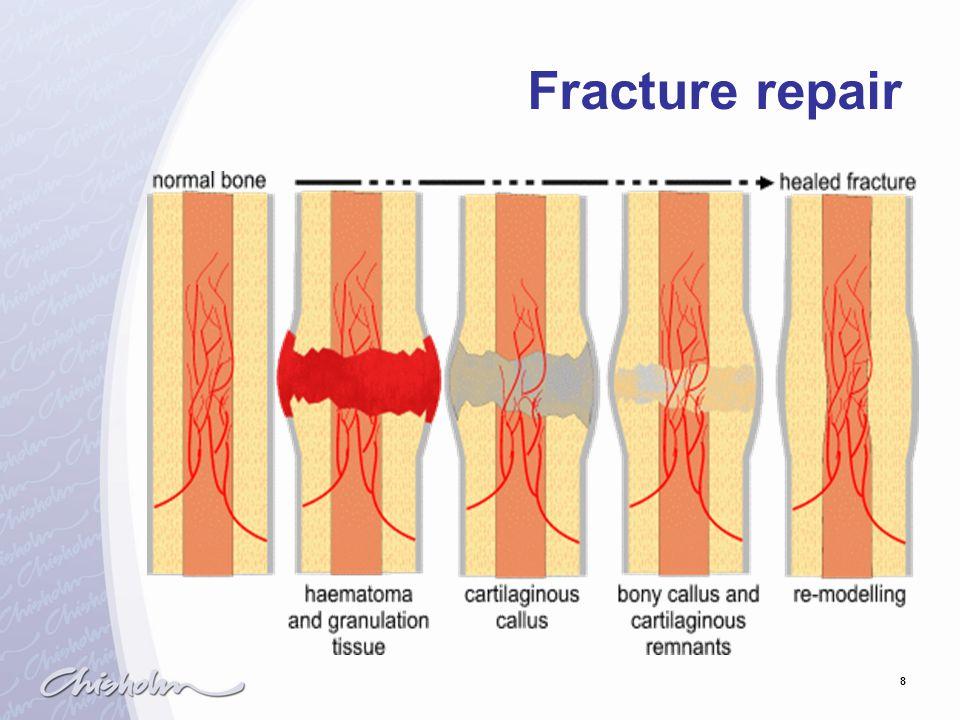 8 Fracture repair