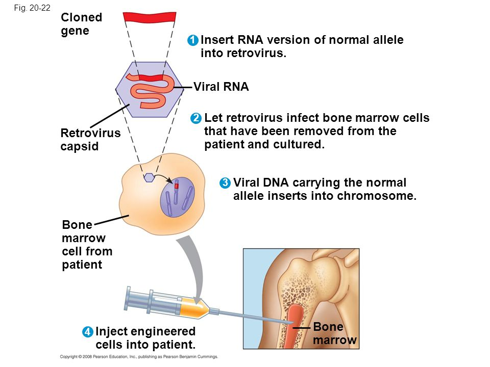 Fig. 20-22 Bone marrow Cloned gene Bone marrow cell from patient Insert RNA version of normal allele into retrovirus. Retrovirus capsid Viral RNA Let