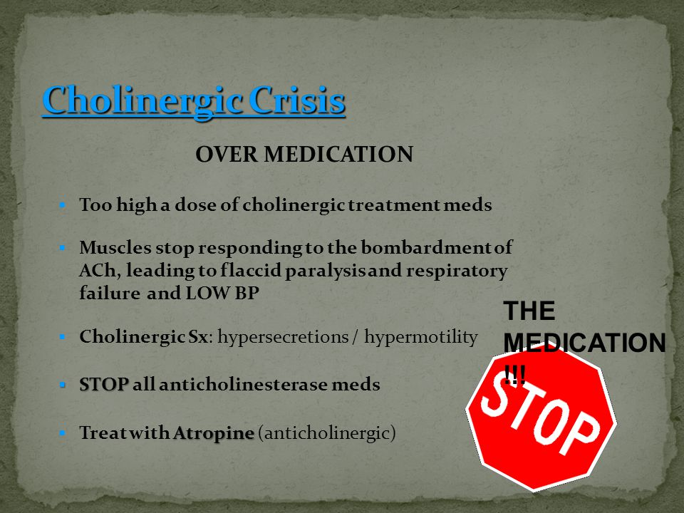 OVER MEDICATION TToo high a dose of cholinergic treatment meds MMuscles stop responding to the bombardment of ACh, leading to flaccid paralysis and respiratory failure and LOW BP CCholinergic Sx: hypersecretions / hypermotility SSSSTOP all anticholinesterase meds TTreat with A AA Atropine (anticholinergic) THE MEDICATION !!!