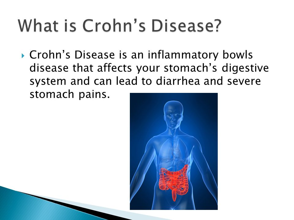  Crohn's Disease is an inflammatory bowls disease that affects your stomach's digestive system and can lead to diarrhea and severe stomach pains.
