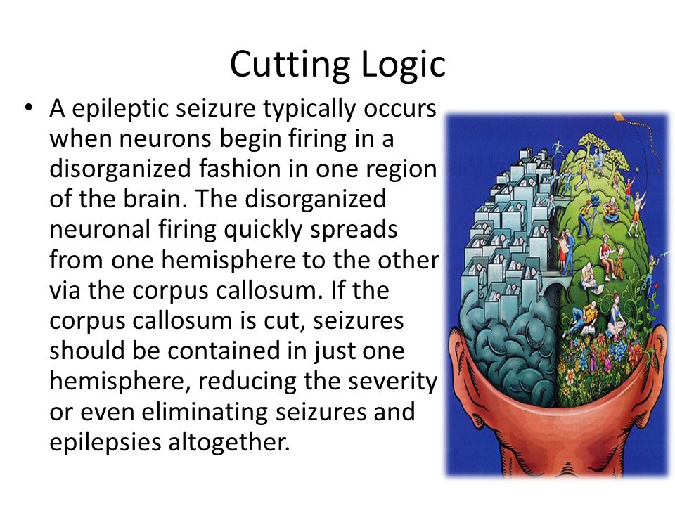 Cutting Logic A epileptic seizure typically occurs when neurons begin firing in a disorganized fashion in one region of the brain.