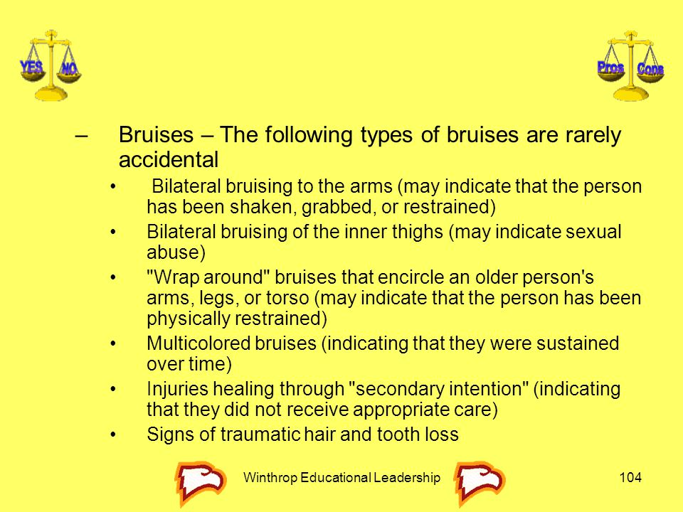 Winthrop Educational Leadership104 –Bruises – The following types of bruises are rarely accidental Bilateral bruising to the arms (may indicate that t
