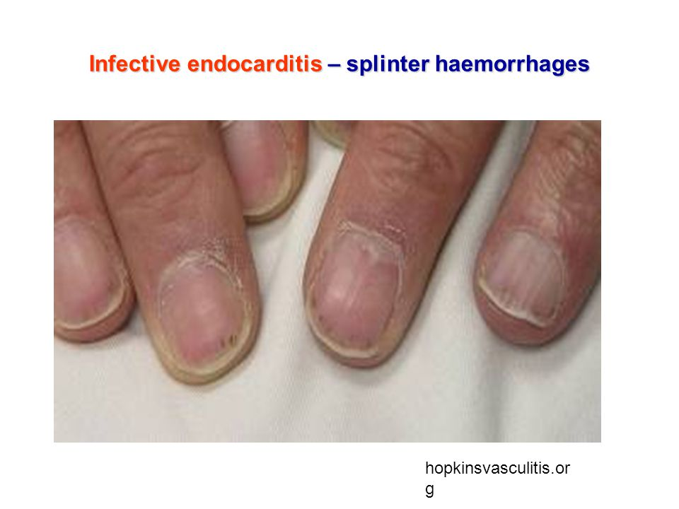 Infective endocarditis – splinter haemorrhages hopkinsvasculitis.or g