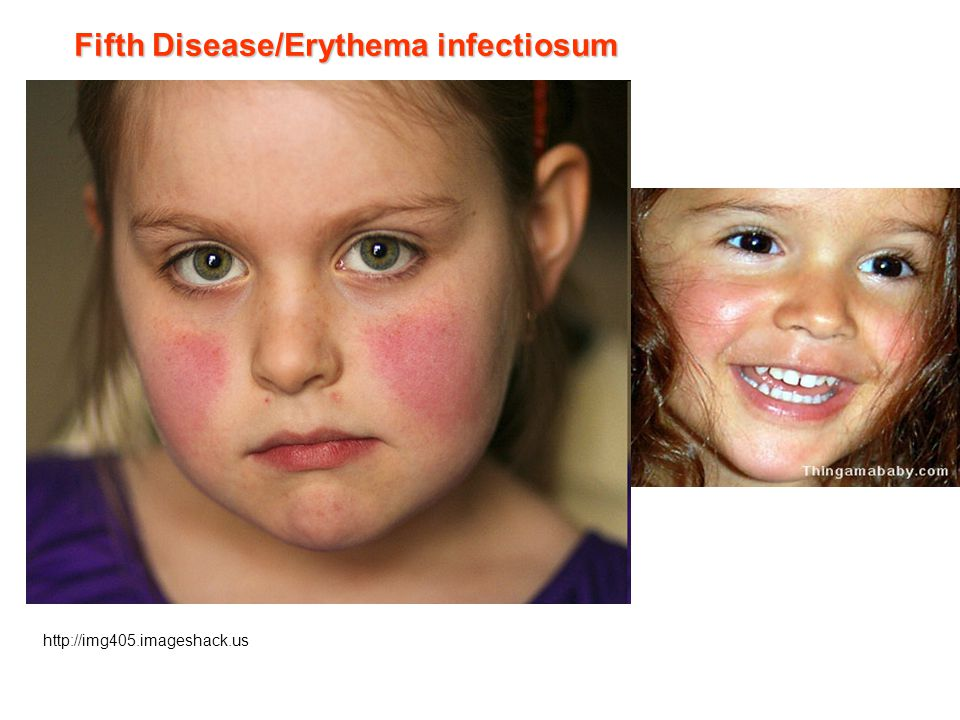 http://img405.imageshack.us Fifth Disease/Erythema infectiosum