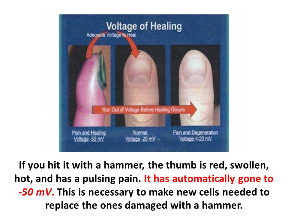 If you hit it with a hammer, the thumb is red, swollen, hot, and has a pulsing pain. It has automatically gone to -50 mV. This is necessary to make ne
