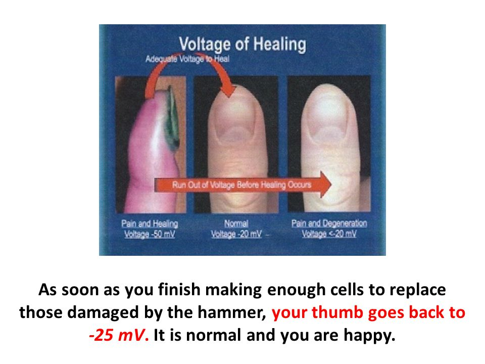 As soon as you finish making enough cells to replace those damaged by the hammer, your thumb goes back to -25 mV. It is normal and you are happy.